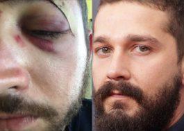 """""""Eu gostaria de te levar uma sopa"""", diz Shia LaBeouf a rapaz agredido por se parecer com ele"""